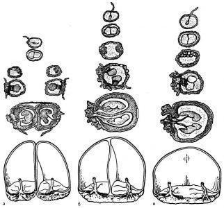 Рис. 3. Варианты плацентации при монозиготной двойне.а — разделение плодного яйца в первые 3 дня после оплодотворения. Диамниотический дихориальный тип;б — разделение плодного яйца между 4—8-м днем после оплодотворения. Диамниотический монохориальный тип;в — разделение на 9—10-й день после оплодотворения. Моноамниотический монохориальный тип.