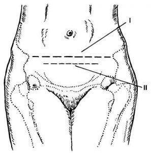 Рис. 3. Схема разреза на коже при чревосечении в модификации Жоэля-Кохена.I—линия, соединяющая верхние передние подвздошные ости; II — линия разреза на коже.