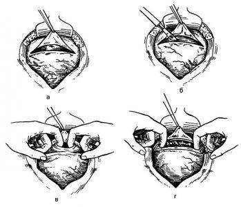Рис. 4. Кесарево сечение в нижнем сегменте матки.а — поперечный разрез пузырно-маточной складки; б — поперечный разрез матки в нижнем сегменте, в — введение в поперечный разрез матки двух пальцев для расширения раны; г — разведение краев разреза в стороны для обеспечения беспрепятственного извлечения плода