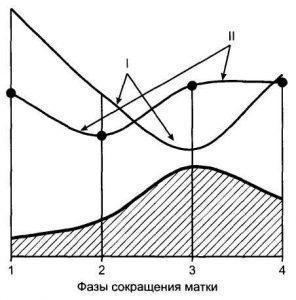 Рис. 4. Характер изменения интенсивности маточно-плацентарного и фетоплацентарного кровотока в зависимости от фаз сокращения матки.I — маточная артерия; II — артерия пуповины;1 — между сокращениями; 2 — начало сокращения; 3 — пик сокращения; 4 — окончание сокращения.
