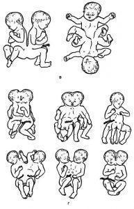 Рис. 4. Продолжение.в — пигопаги; г — неполное расхождение близнецов.