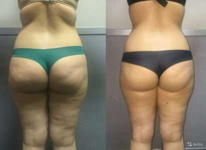 4 самых быстрых способа вернуть своё тело! Подсказки от вдохновлённой мамы, которая потеряла 40 кг жира всего лишь за 6 месяцев