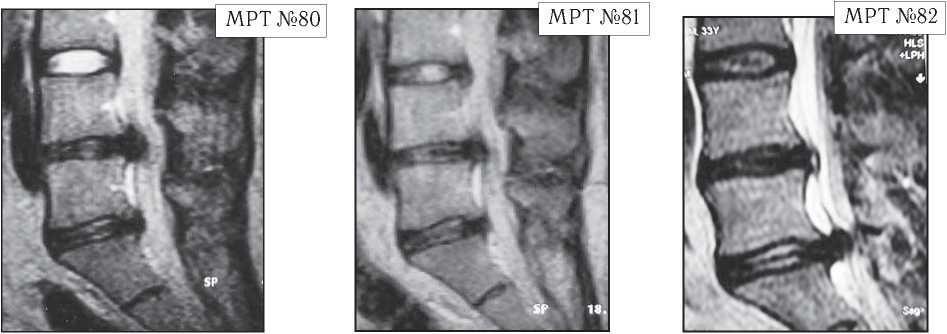 На МРТ №80 от 04.09.2002 года, наблюдается исправление физиологического лордоза, грыжа межпозвонкового диска в сегменте L4—L5, стеноз спинномозгового канала на данном уровне, компенсированная спондилёзом протрузия в сегменте L5—S1. На МРТ №81 того же пациента от 19.07.2007 наблюдается практически аналогичная с 2002 годом картина, с той лишь разницей, что грыжа межпозвонкового диска в сегменте L4-L5 частично компенсировалась спондилёзом. На МРТ №82 того же пациента от 02.04.2010 наблюдается исправление физиологического лордоза, компенсированная спондилёзом грыжа межпозвонкового диска в сегменте L4-L5, секвестрированная грыжа, межпозвонкового диска в сегменте L5—S1 абсолютный стеноз спинномозгового канала на данных уровнях.