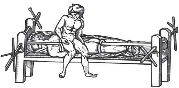 «Гиппократово ложе». Устройство, используемое для растяжения позвоночника. Схема рисунка из византийского издания работ Клавдия Галена.