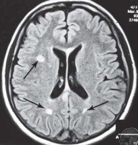 МРТ №33 На МРТ отчётливо видны множественные очаги демиелинизации, вследствие развития нейроинфекции