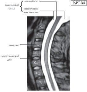 На магнитно-резонансной томографии (МРТ) №1 — шейный отдел позвоночника, в относительно нормальном состоянии