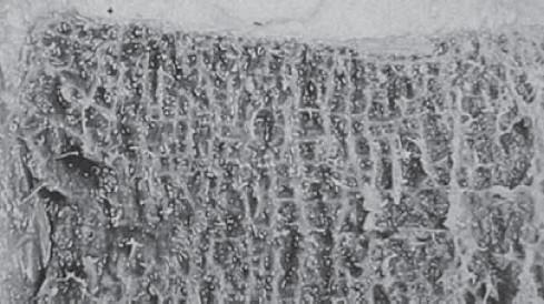 Наблюдается пористая структура тела позвонка в разрезе