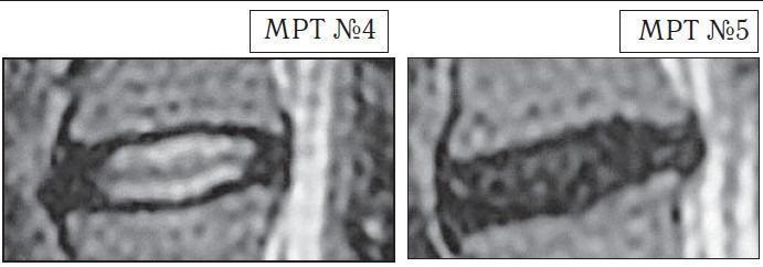 На МРТ №4 наблюдается межпозвонковый диск в начальной стадии развития дегенеративно-дистрофического процесса. На МРТ №5 наблюдается межпозвонковый диск на более поздней стадии развития дегенеративно-дистрофического процесса.