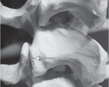 На фото макета позвоночника стрелкой указан дугоотростчатый сустав позвоночника.