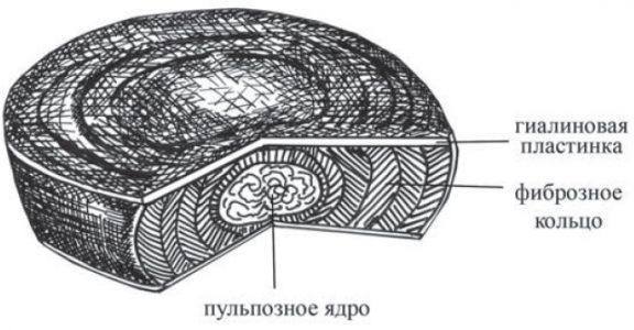 Схема строения межпозвонкового диска