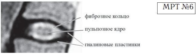 На данном снимке хорошо просматривается пульпозное ядро, гиалиновые пластинки и фиброзное кольцо
