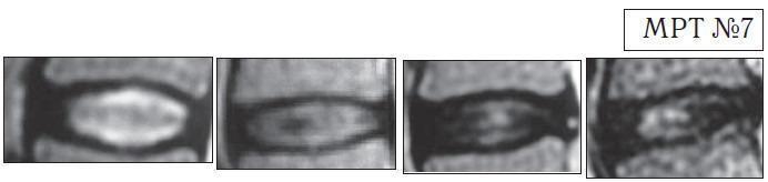 МРТ №7. На снимках наблюдаются этапы развития дегенеративно-дистрофического процесса в межпозвонковых дисках