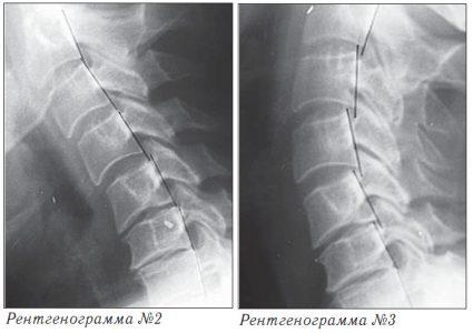 Остеохондроз. Рентгенограмма