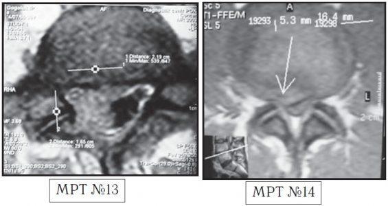 На МРТ №13 наблюдается медиолатеральная грыжа межпозвонкового диска (заднебоковая). На МРТ №14 наблюдается фораминальная грыжа межпозвонкового диска с локализацией внутрь межпозвонкового отверстия.