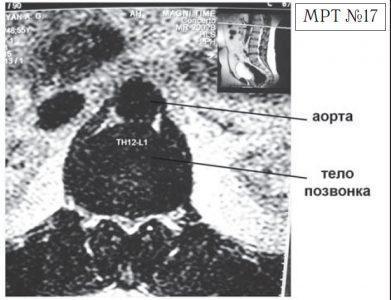 На МРТ №17 наблюдается вентральная грыжа межпозвонкового диска в сегменте Th12-L1 с выраженными спаечными процессами на этом уровне, с вовлечением в данный процесс брюшной аорты