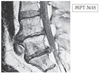 На МРТ №18 наблюдаются грыжи межпозвонковых дисков в сегментах: —L4-L5 вентральной локализации с образованием каудального секвестра; при расположении межпозвонковой грыжи на один сегмент выше, «конфликт» с брюшной аортой был бы неизбежен; — L5-S1 — дорсальная грыжа межпозвонкового диска, частично компенсированная спондилёзом