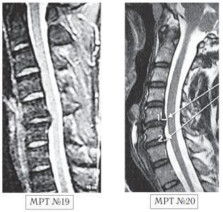 На МРТ №19 наблюдается дорсальная грыжа межпозвонкового диска шейного отдела позвоночника в сегменте С5-С6 с компрессией спинного мозга. На МРТ №20 наблюдается грыжа межпозвонкового диска шейного отдела позвоночника в сегменте С5-С6 и протрузия в сегменте С6-С7.