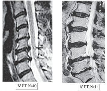 На МРТ №40 наблюдается типичный пример развития стеноза второго типа в шейном отделе позвоночника. И аналогичная картина, только, в поясничном отделе позвоночника, отображена на МРТ №41