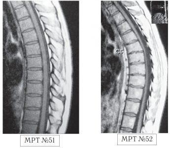 На МРТ №51 наблюдается грудной отдел позвоночника с нормально выраженным физиологическим кифозом, межпозвонковыми дисками и спинным мозгом. На МРТ №52 наблюдается усиление грудного кифоза (гиперкифоз), снижение высоты межпозвонковых дисков с деформацией замыкательных пластин, расширением тел позвонков в вершине кифоза и самое главное — перерастяжение и уплощение спинного мозга на уровне вершины искривления.