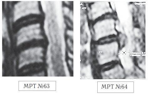 На МРТ №63 наблюдается фрагмент шейного отдела позвоночника. На данном уровне отчётливо видно исправление лордоза, стеноз спинномозгового канала, небольшие протрузии практически компенсированные спондилёзом в сегментах C5-C6, C6—C7, гипертрофия задней продольной связки на данном уровне. На МРТ №64 наблюдается фрагмент шейного отдела позвоночника той же пациентки через два месяца. На снимке видно, что к имевшимся (на МРТ №63) проблемам добавилась ещё и грыжа в сегменте С5—С6, и секвестрированная грыжа межпозвонкового диска в сегменте C6—C7.