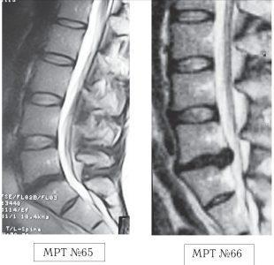 На МРТ №65 наблюдается нормальный физиологический лордоз, снижение высоты межпозвонкового диска в сегменте L5—S1, вследствие развития в нём дегенеративно-дистрофического процесса (остеохондроза). На МРТ №66 наблюдается сглаженность физиологического лордоза, грыжа межпозвонкового диска в сегменте L5—S1.