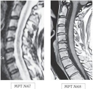 На МРТ №67 от 17.09.2009 наблюдается шейный отдел позвоночника с признаками формирования протрузий в сегментах C5—C6, C6—C7. Физиологический лордоз сохранён, признаков нарушения проводимости ликворных путей не наблюдается. На МРТ №68 от 12.10.2009 у той же пациентки наблюдается значительное прогрессирование дегенеративно-дистрофического процесса в шейном отделе позвоночника с осложнениями в виде грыж межпозвонковых дисков C4-C5, C5-C6, C5—C7, сглаживание физиологического лордоза с нарушением ликвородинамики.