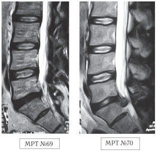 На МРТ №69 наблюдается сглаженность физиологического лордоза поясничного отдела позвоночника, протрузия в сегменте L5—S1 компенсированная спондилёзом, эпидурит на этом же уровне. На МРТ №70 того же пациента, наблюдается состояние после четырёх сеансов мануальной терапии, в сегменте L5—S1 — секвестрированная грыжа межпозвонкового диска с каудальной миграцией секвестра, абсолютный стеноз спинномозгового канала, сглаженность физиологического лордоза, эпидурит.