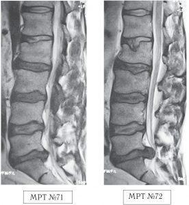 На МРТ №71 наблюдается сглаженность физиологического лордоза, грыжа межпозвонкового диска в сегменте L5—S1, спондилёз на том же уровне, множественные грыжи Шморля, стеноз. На МРТ №72 наблюдается помимо всего выше перечисленного ещё и компрессионный перелом тела позвонка Lu и секвестрированная грыжа межпозвонкового диска в сегменте L5—S1, абсолютный стеноз спинномозгового канала.