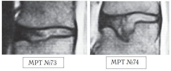 На МРТ №73 — увеличенный фрагмент МРТ №71 на уровне сегмента L1—L2, на котором наблюдается травма замыкательной пластинки L2 позвонка, как следствие первых двух сеансов у этого «специалиста». На МРТ №74 наблюдается увеличенный фрагмент МРТ №72 на уровне сегмента L1—L2, на котором наглядно видны последствия третьего сеанса «вправления диска», и как следствие — компрессионный «пролом» тела позвонка L2 и его замыкательной (гиалиновой) пластинки и внутренний разрыв межпозвонкового диска.