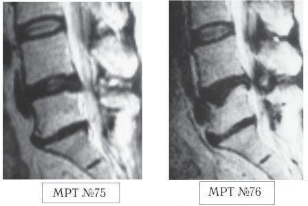 На МРТ №75 наблюдается состояние поясничного отдела позвоночника после нескольких месяцев лечения методом вытяжения: сглаженность физиологического лордоза, стеноз спинномозгового канала, грыжа межпозвонкового диска в сегменте L4-L5, эпидурит на данном уровне, снижение высоты межпозвонкового диска в сегменте L5-S1 вследствие развития в нём дегенеративно-дистрофического процесса, жировая дегенерация в телах смежных позвонков данного сегмента, спондилёз на данном уровне. На МРТ №76 наблюдается состояние поясничного отдела позвоночника той же пациентки после нескольких сеан¬сов лечения у мануального терапевта: кифотизация физиологического лордоза, абсолютный стеноз спинно¬мозгового канала, грыжа межпозвонкового диска в сег¬менте L4-L5, эпидурит на данном уровне, снижение высоты межпозвонкового диска в сегменте L5—S1, компрессионный перелом тела позвонка L5, усугубление дегенеративных процессов в сегменте L5—S1.