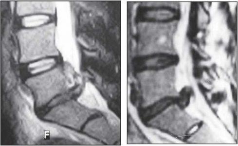 На серии МРТ №27 наблюдаются секвестрированные грыжи межпозвонковых дисков в поясничном отделе позвоночника в сегментах L5—S1 с краниальной (вверх) миграцией секвестра (фрагментов межпозвонкового диска)