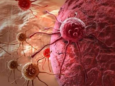 Если жить на позитиве, рака можно не бояться