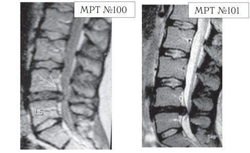 На МРТ №100 наблюдается грыжа межпозвонкового диска L4-L5. Состояние до операции. На МРТ №101 наблюдается послеоперационный рецидив грыжи межпозвонкового диска в сегменте L4-L5.