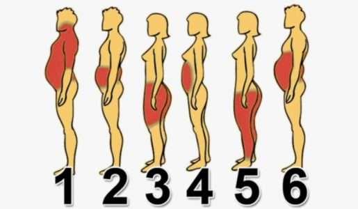 Как Распознать И Победить Разные Типы Ожирения?