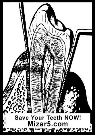Поперечное сечение зуба