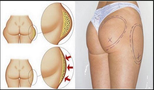 Убрать жир только с бочков — можно только хирургическим путем.