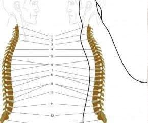 Как снять боль в спине?