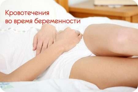 Кровотечения во время беременности и в родах