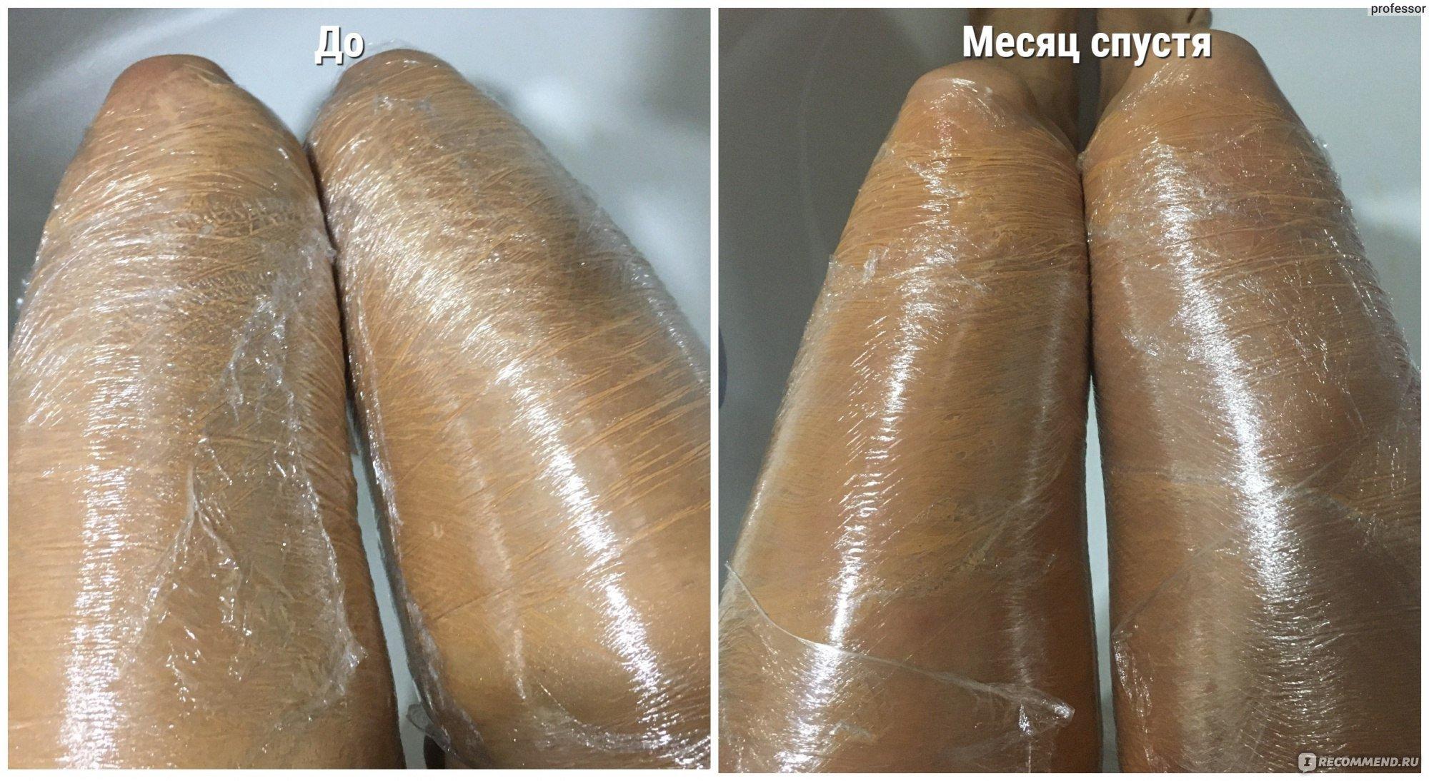 Обёртывание. Как побороть целлюлит с помощью перца?