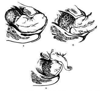 Рис. 21.5. Элементы биомеханизма родов при тазовом предлежании плода. а — боковое сгибание поясничного отдела позвоночника, б — внутренний поворот плечиков и наружный поворот туловища; в — сгибание и рождение головки плода.