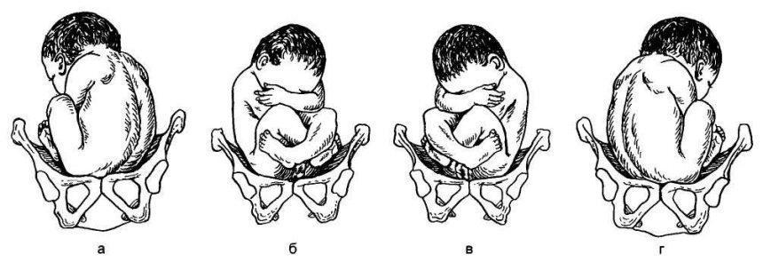 Рис. 21.2. Варианты позиции и вида при тазовом предлежании плода. а — первая позиция, передний вид; б — вторая позиция, задний вид; в — первая позиция, задний вид; г — вторая позиция, передний вид.