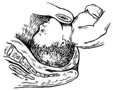 Рис. 21.4. Задержка Подбородка Плода Над Лобковым Симфизом При Заднем Виде Тазового Предлежания.