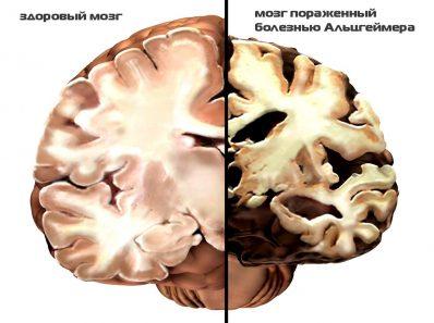 Как разминуться с Альцгеймером?