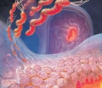 Еще один препарат на основе фтористого соединения повержен в прах. Андреас Шульд и Венди Смолл