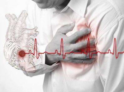 Осложнения после инфаркта легче перенести физически активным людям