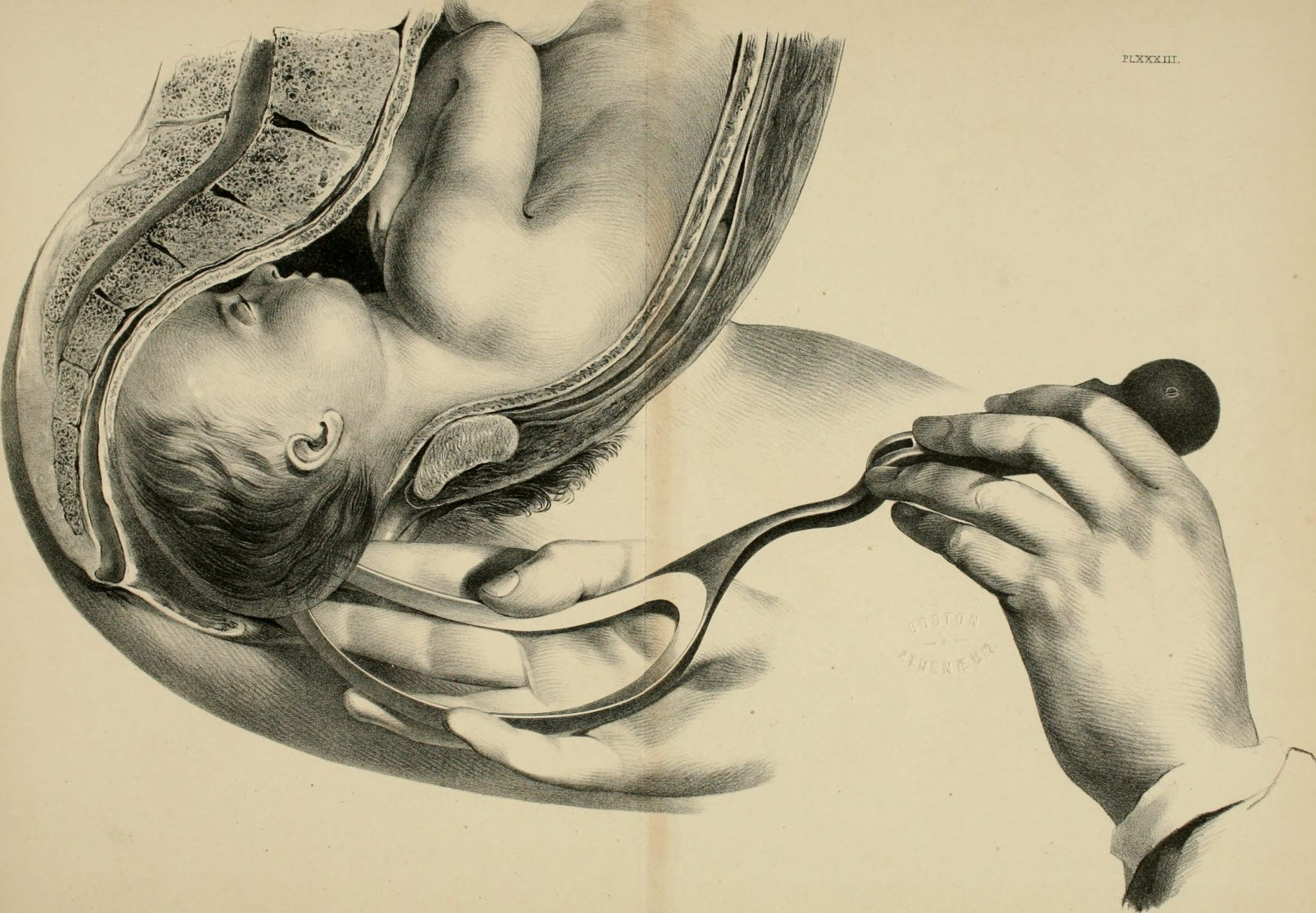 OBSTETRICS ILLUSTRATED