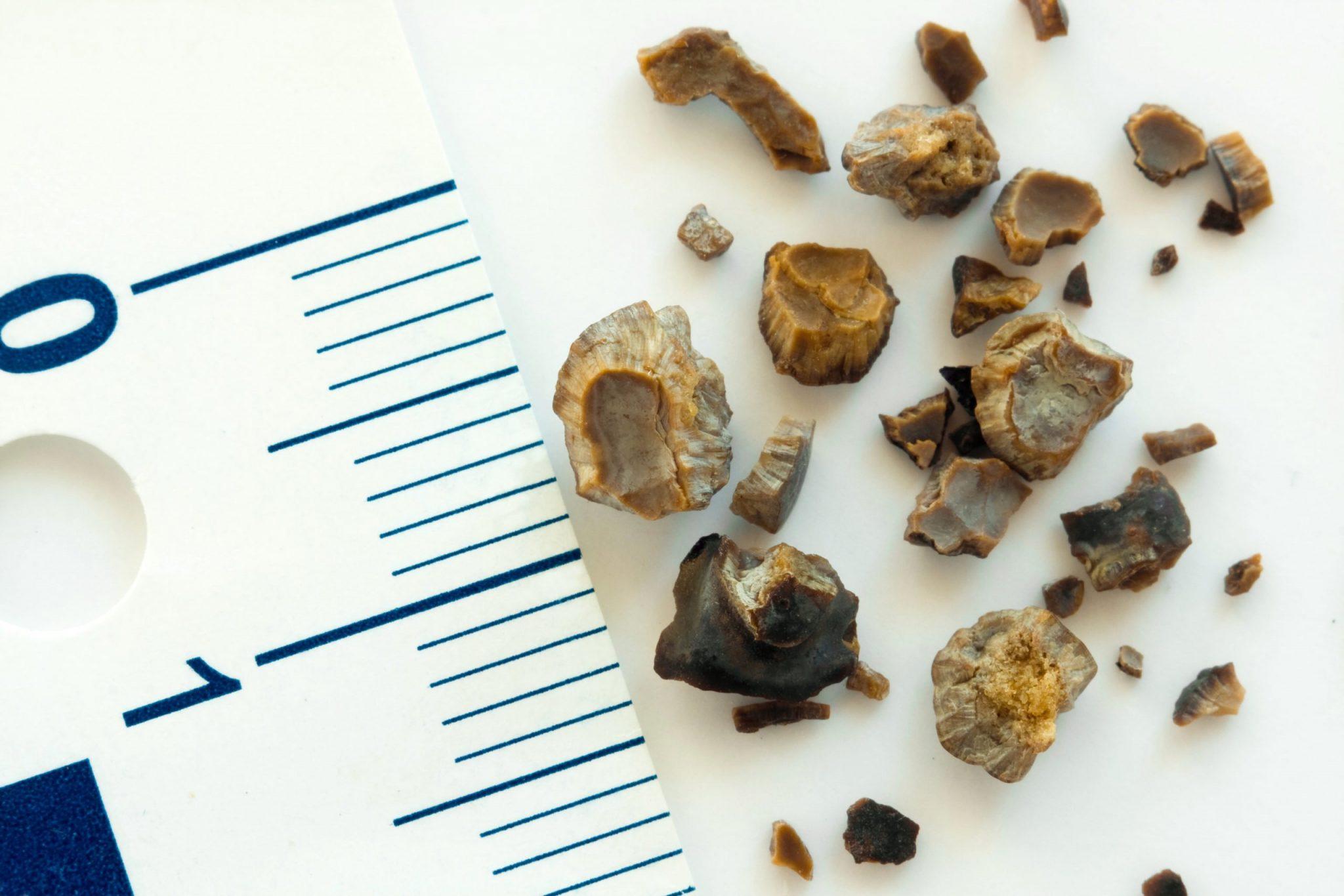 Вы можете удалить камни из почек всего за 8 дней!
