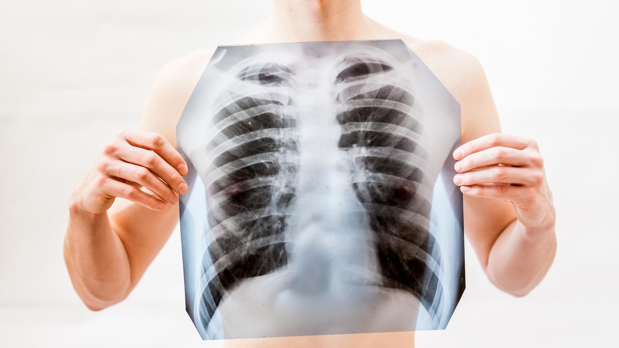 Из-за каких симптомов пневмонии можно начинать бить тревогу