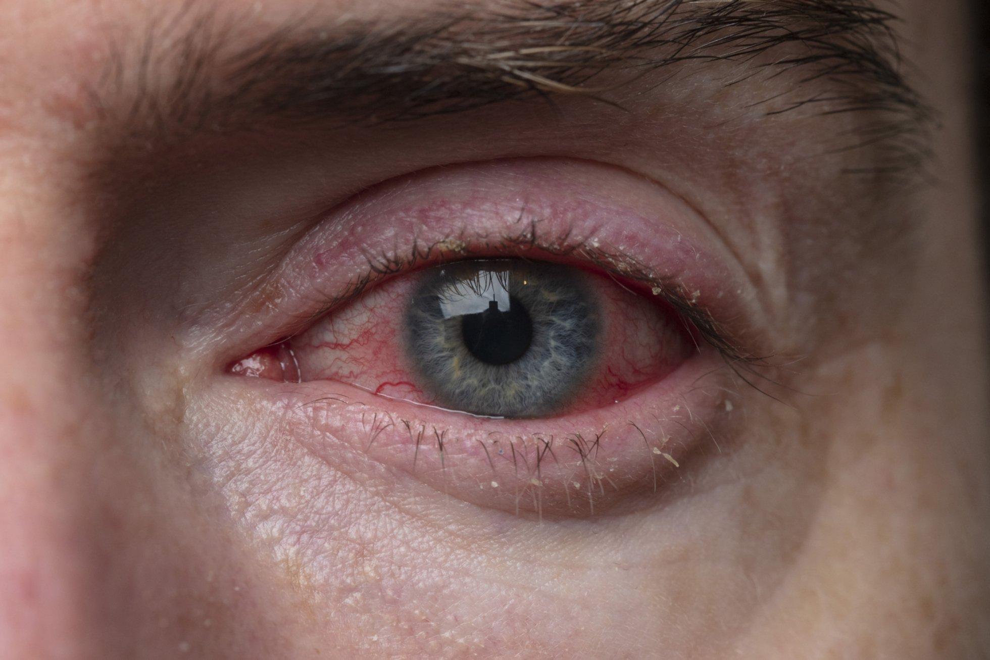 Вы забудете о зудящих глазах благодаря домашним средствам