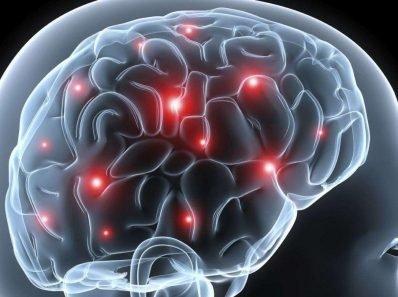 Как Обнаружить Сотрясение Мозга И Что Делать Дальше